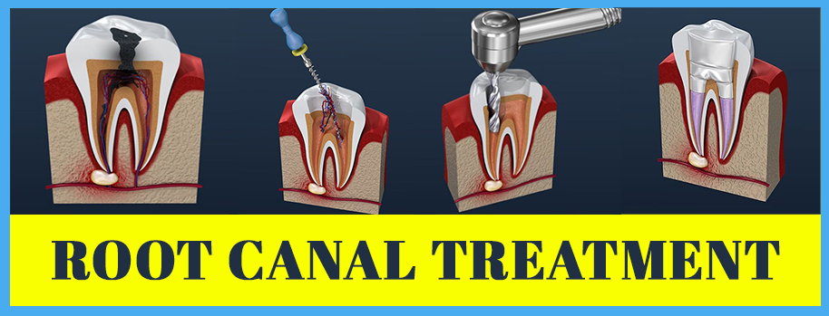 Root Canal Treatment In Haldwani